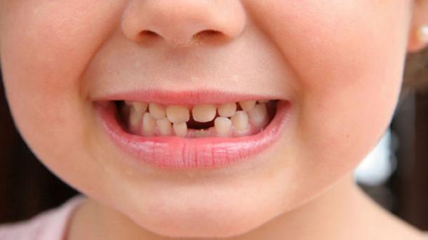 2-18 насны хүүхдүүдийн шүдийг эмчилнэ